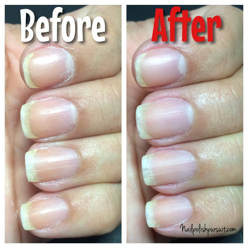 Whintener Nail Care - Opiniones Online 2